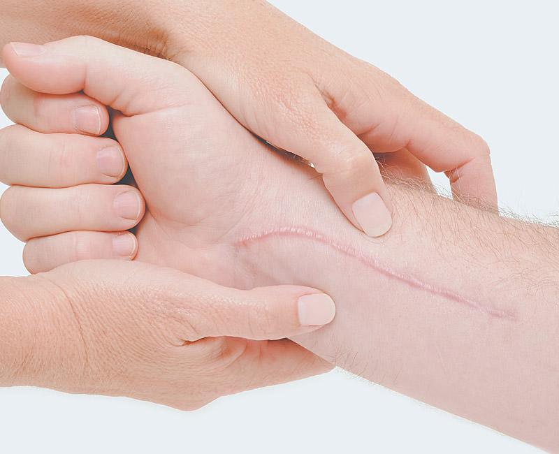 correcao de cicatrizes